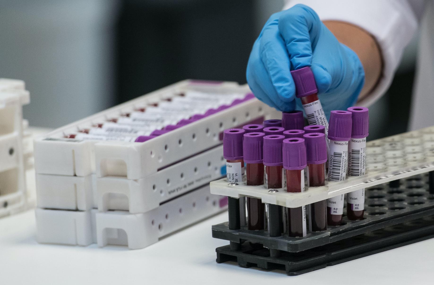 Coronavirus : Nice propose un test sérologique pour tous ses habitants