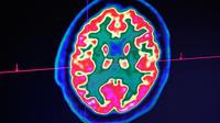 Le corps est sensible à l'activité neuronale