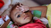 Un enfant yéménite souffrant de malnutrition. Photo prise le 6 octobre 2018 dans un hôpital de Sanaa [MOHAMMED HUWAIS / AFP]