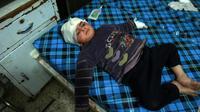 Un enfant syrien est soigné dans un hôpital de Douma, dans la Ghouta orientale, le 3 mars 2018 [HAMZA AL-AJWEH / AFP]