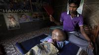 Abdul Rahman, au chevet de sa fille de 18 mois, Roona Begum, souffrant d'une hypertrophie du crâne, une maladie rare, le 15 avril 2013 près de Agartala, dans le nord-est de l'Inde [ / AFP]