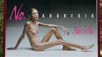 Italie, 2007 : campagne choc dénonçant les conditions extrêmes imposées aux mannequins dans le milieu de la mode.