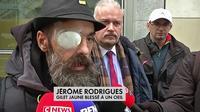 Jérôme Rodriguez a-t-il été touché par un tir de LBD ?