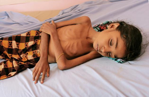 Une petite fille yéménite souffrant de malnutrition, dans la province de Hajjah, au Yémen, le 25 octobre 2018 [ESSA AHMED / AFP/Archives]