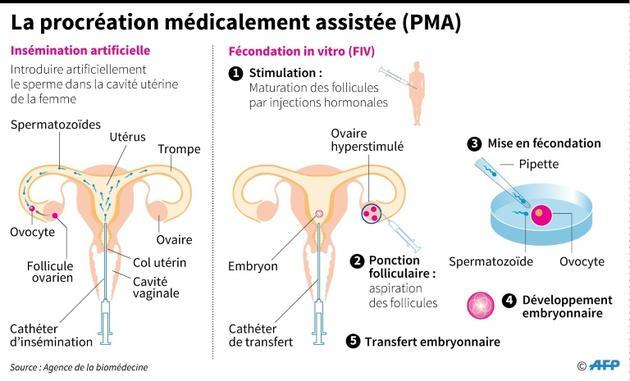 La procréation médicalement assistée [Paz PIZARRO / AFP]