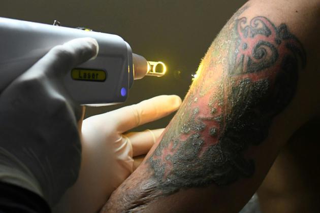 Sandi Widodo travaille sur un client musulman qui souhaite effacer ses tatouages, le 18 avril 2018 à Jakarta, en Indonésie [GOH Chai Hin / AFP]