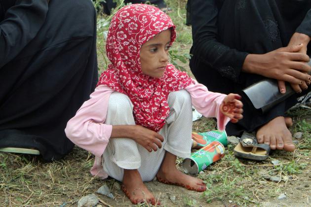 Une fillette déplacée de la ville yéménite de Hodeida (ouest), sous contrôle des rebelles Houthis et visée par une offensive des forces progouvernementales attend à Abs, dans la province d'Al Hajjah (nord-ouest), de pouvoir se faire examiner par un médecin le 30 juin 2018 [ESSA AHMED / AFP/Archives]