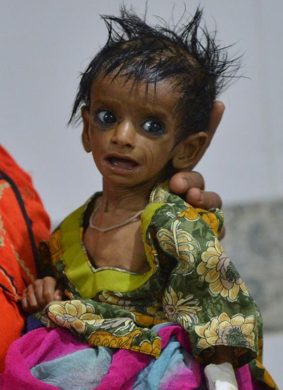Une mère de 25 ans, Nazeeran, porte dans ses bras sa fillette qui souffre de malnutrition, le 25 mai 2018 [RIZWAN TABASSUM / AFP]