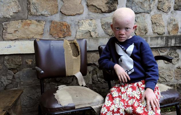 Une enfant albinos au Burundi, en 2009 [Stephane de Sakutin / AFP/Archives]