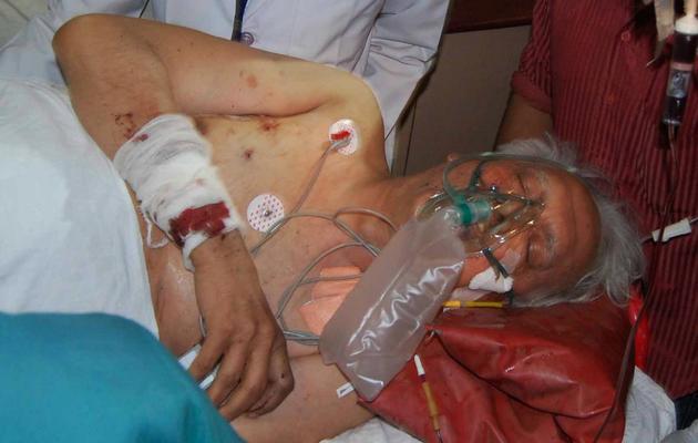 Un homme blessé lors de l'attaque d'un convoi d'élus par des maoïstes est pris en charge par des médecins, le 26 mai 2013 à Raipur [Strdel / AFP]