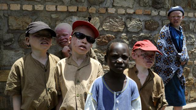 Des enfants albinos au Burundi en 2007 [Stephane de Sakutin / AFP/Archives]