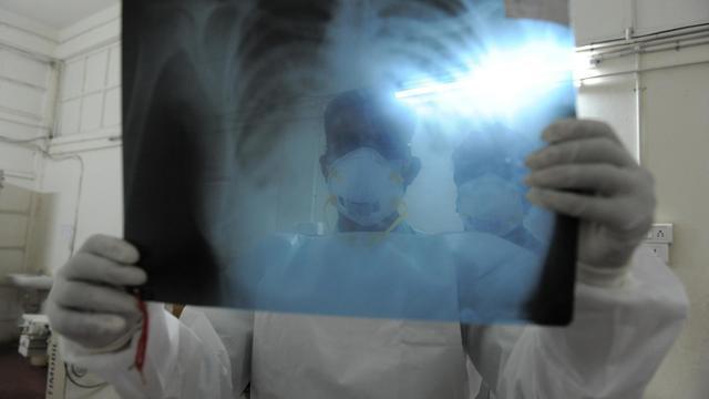 Un radiologue examine un cliché [Sam Panthaky / AFP/Archives]