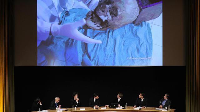 Présentation lors d'une conférence de presse le 16 décembre 2010 à Paris des résultats d'une étude scientifique qui ont permis d'identifier la tête d'Henri IV, assassiné en 1610 par Ravaillac [Fred Dufour / AFP/Archives]