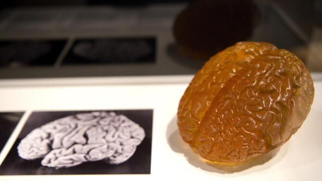 Une photo et une reproduction du cerveau d'Albert Einstein présentés lors d'une exposition à Londres en mars 2012