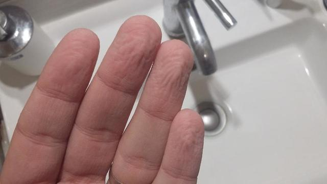 Pourquoi la peau des mains se fripe-t-elle dans le bain ...