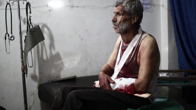 Un homme blessé à l'hôpital à Douma, au nord-est de Damas, le 24 août 2014  [Abd Doumany / AFP]