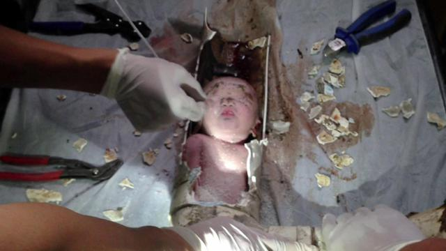 Image tirée d'une vidéo de l'AFPTV montrant l'intervention des secours sur le nouveau-né, le 28 mai 2013 à Jinhua en Chine [Afptv / AFP]