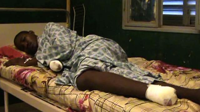 Capture d'écran d'une vidéo tournée le 11 septembre 2012 montrant un homme amputé, sur son lit d'hôpital à Gao [ / AFP]