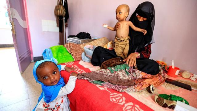 Des enfants souffrant de malnutrition dans un hôpital de Sanaa, au Yémen, le 22 juin 2019 [Mohammed HUWAIS / AFP/Archives]