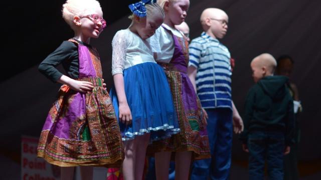 Des enfants albinos participent à l'élection des premiers Miss et Mister Albinisme Kenya, le 21 octobre 2016 à Nairobi [TONY KARUMBA / AFP]