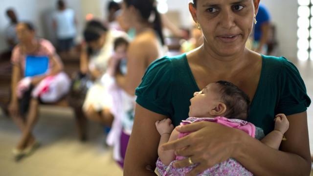 Une mère avec son bébé souffrant de de microcephalie, le 27 janvier 2016 à l'hôpital Sociais Irma Dulce à Salvador au Brésil [CHRISTOPHE SIMON / AFP]