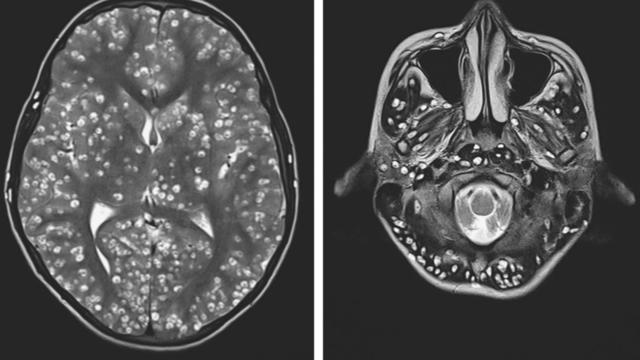 L'IRM a montré que le patient avait des tâches blanches dans le cerveau, correspondant à des kystes créés par des larves de ver solitaire.