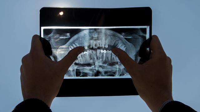 Les médecins ont alors pu confimer qu'il s'agissait d'une dent mal positionnée responsable d'une inflammation de la muqueuse nasale. (photo d'illustration)