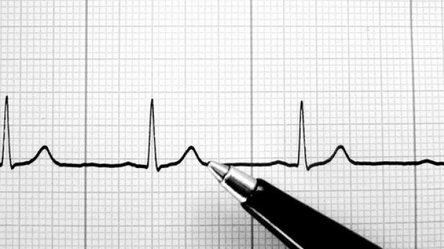 Les propriétaires de chiens présentent un risque cardiovasculaire moins élevé que la moyennne