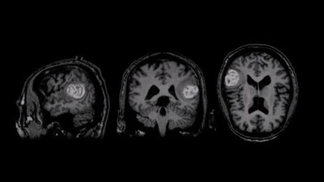 IRM dite classique d'un cerveau atteint d'une tumeur (photo d'illustration).