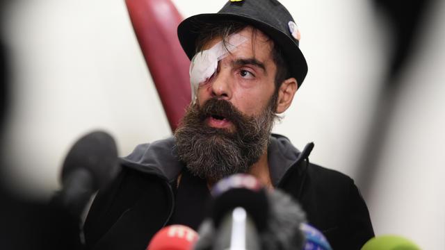 Jérôme Rodrigues, qui aura 40 ans en mai, va devoir rester cinq jours à l'hôpital pour éviter une infection à l'oeil.